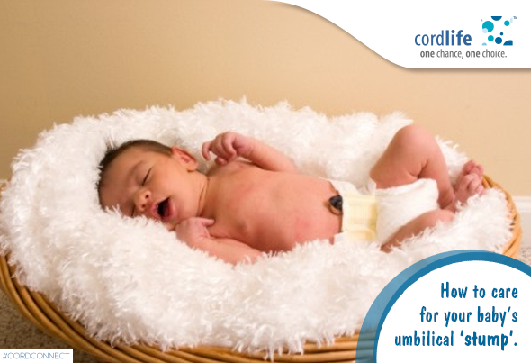 Umbilical-cord-care-1