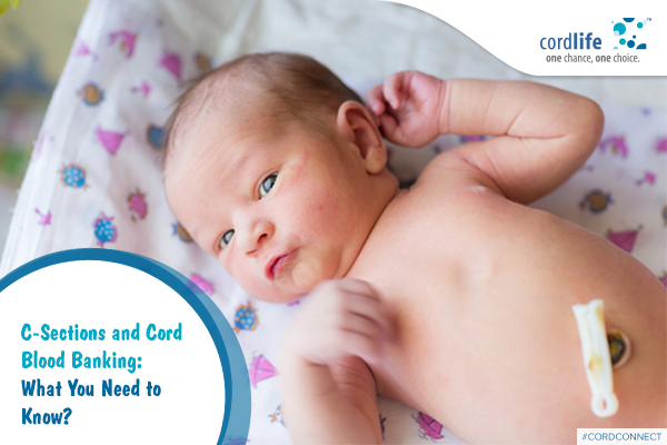 c-sections-and-cord-blood-banking-what-you-need-to-know