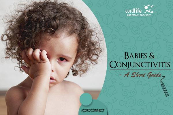 Baby & Conjunctivitis- 08 Jun
