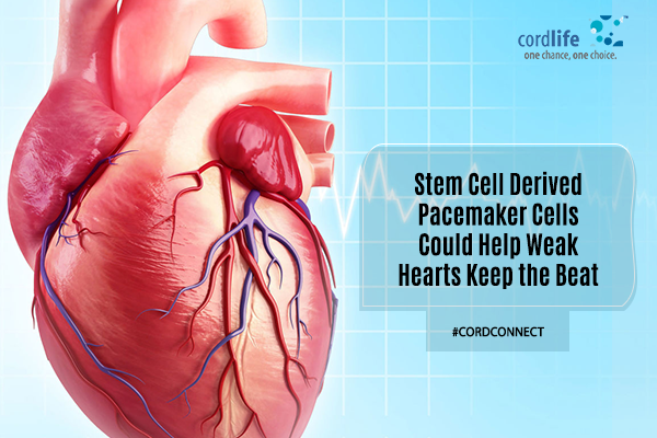 Stem cells derived pacemaker for weak hearts