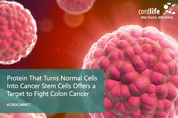 Protein-That-Turns-Normal-Cells-Into-Cancer-Stem-Cells-Offers-a-Target-to-Fight-Colon-Cancer