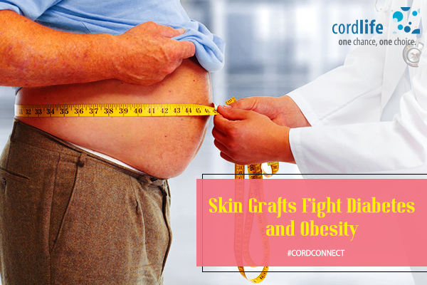 Skin-Grafts-Fight-Diabetes-and-Obesity