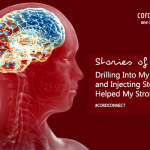 Stories of hope: Drilling into my skull and injecting stem cells helped my stroke