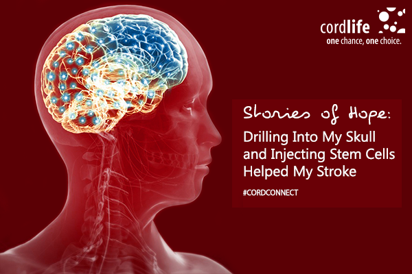 Stories-of-Hope-Drilling-Into-My-Skull-and-Injecting-Stem-Cells-Helped-My-Stroke