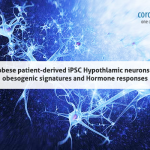 Super-obese patient-derived iPSC Hypothlamic neurons exhibit obesogenic signatures and hormone responses