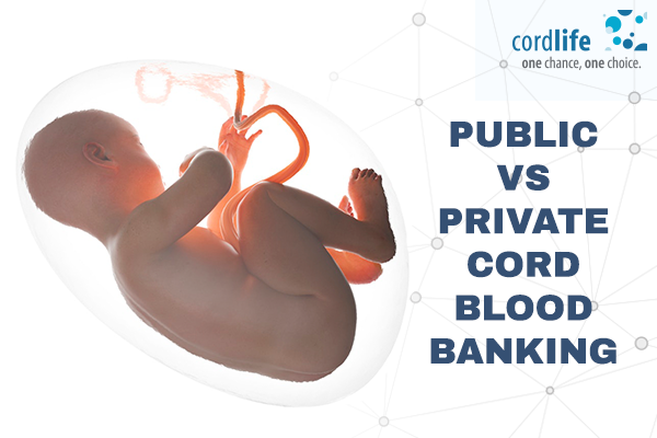 Public-vs-private-cord-blood-banking
