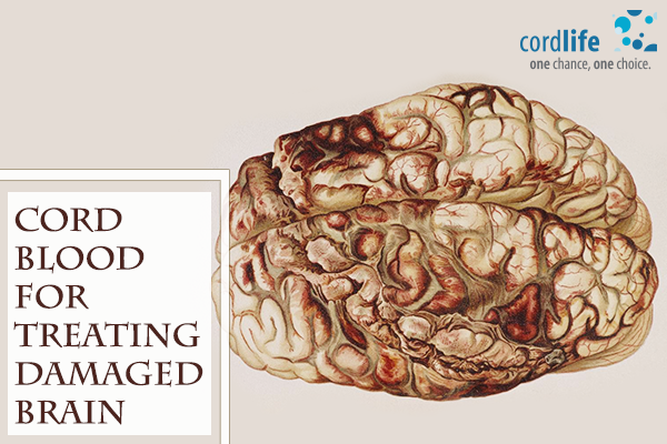 Cord-blood-for-treating-damaged-brain