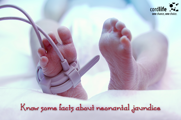 Know-some-facts-about-neonantal-jaundice