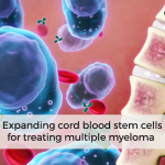 Expanding Cord Blood Stem Cells for Treating Multiple Myeloma