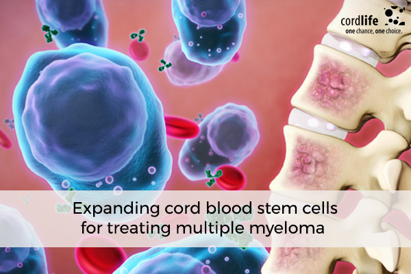 Expanding-cord-blood-stem-cells-for-treating-multiple-myeloma