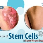 The Use of Stem Cells in Burnt Wound Treatment