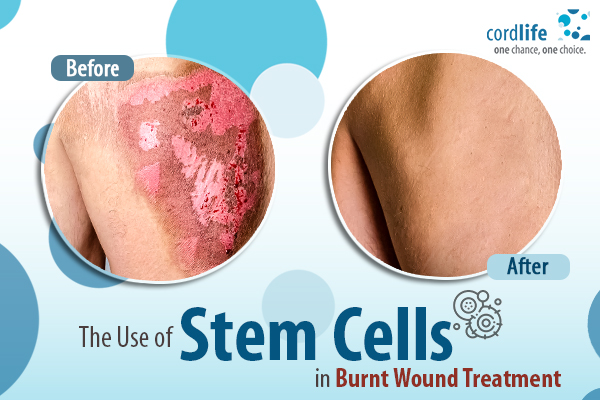 Blog_The Use of Stem Cells in Burnt Wound Treatment (2)
