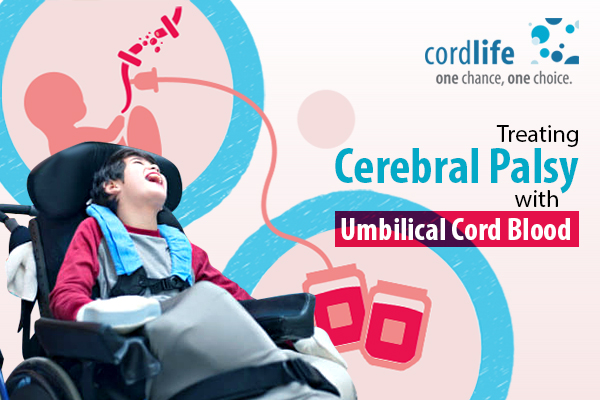 Treating Cerebral Palsy with Umbilical Cord Blood (1)