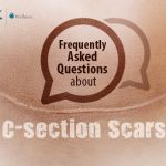 Frequently Asked Questions About C-section Scars
