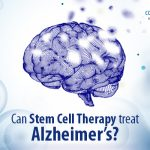 Can Stem Cell Therapy Treat Alzheimer's?