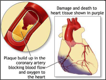 Mesenchymal Stem Cell Therapy in Heart Disease