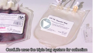 Cord blood collection process (real cord blood)